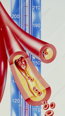 Artwork of atherosclerosis & blood pressure scale