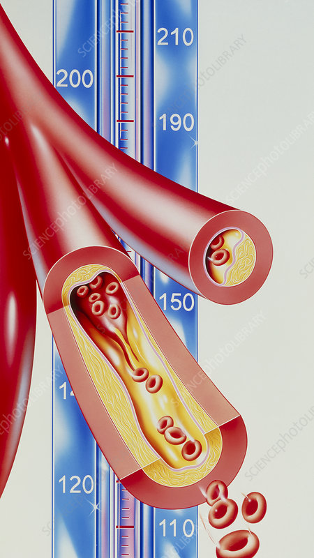 Illustration of atherosclerosis and blood pressure scale