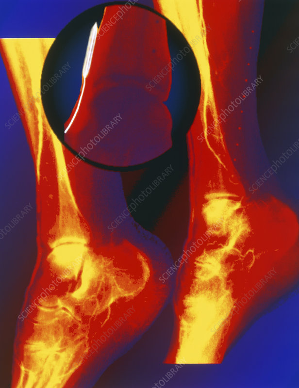 Coloured angiogram of balloon angioplasty in leg