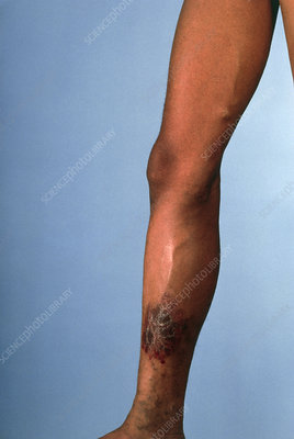Leg suffering from chronic venous insufficiency