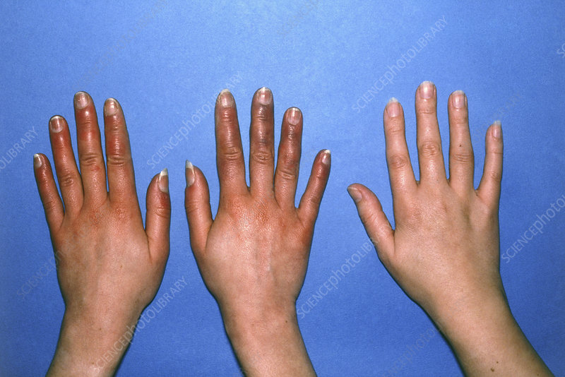 Hands with acrocyanosis compared to healthy hand