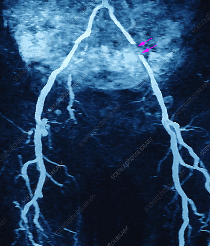 Arterial stent, MRA