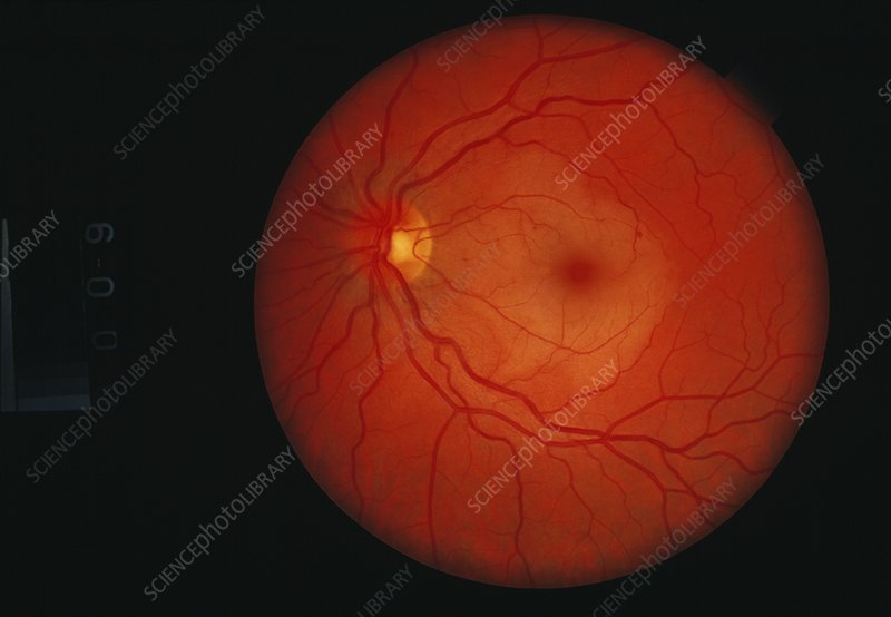 Retinal blood vessel disease
