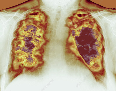 Loss of lung tissue, X-ray
