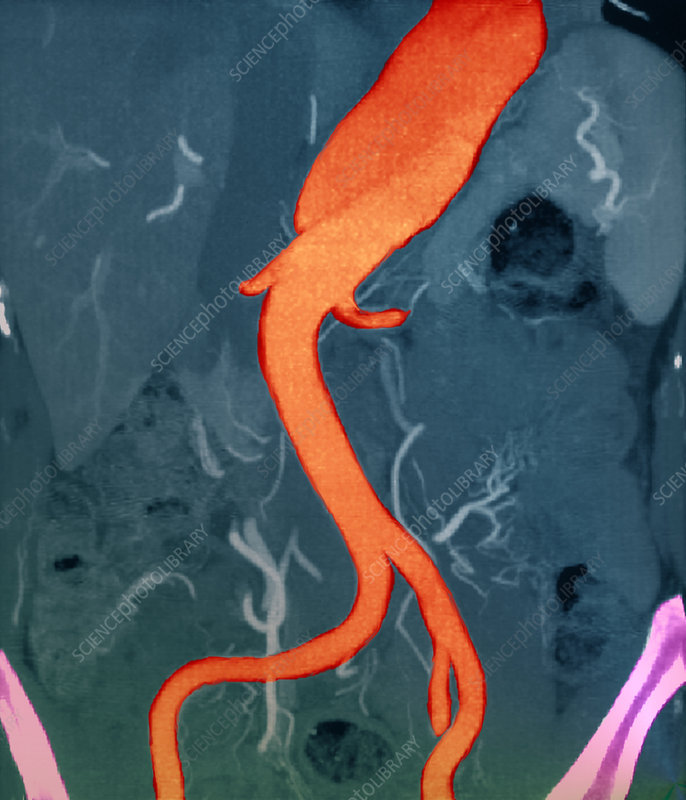 Aortic aneurysm, CT scan
