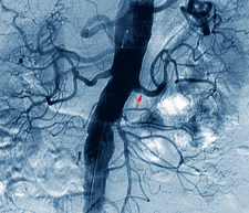Narrowed renal artery, X-ray