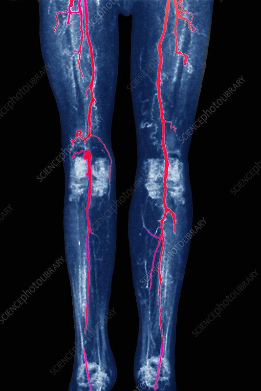 Thrombosis Of Leg Arteries  Mri Scan