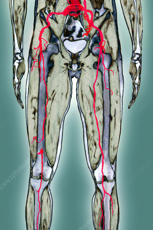 Thrombosis of leg arteries, MRI scan