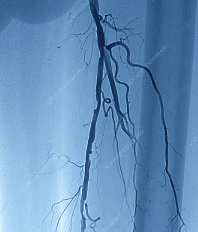 Narrowed femoral artery, angiogram