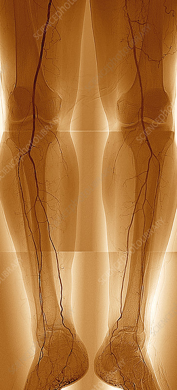 Narrowed Leg Arteries Angiogram Stock Image M175 0597