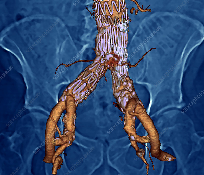 Stent in the abdominal aorta, 3D CT scan