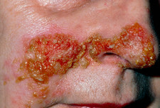 Impetigo on woman's face, secondary to herpes S