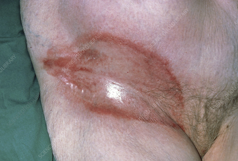 Intertrigo rash on elderly woman's groin - Stock Image