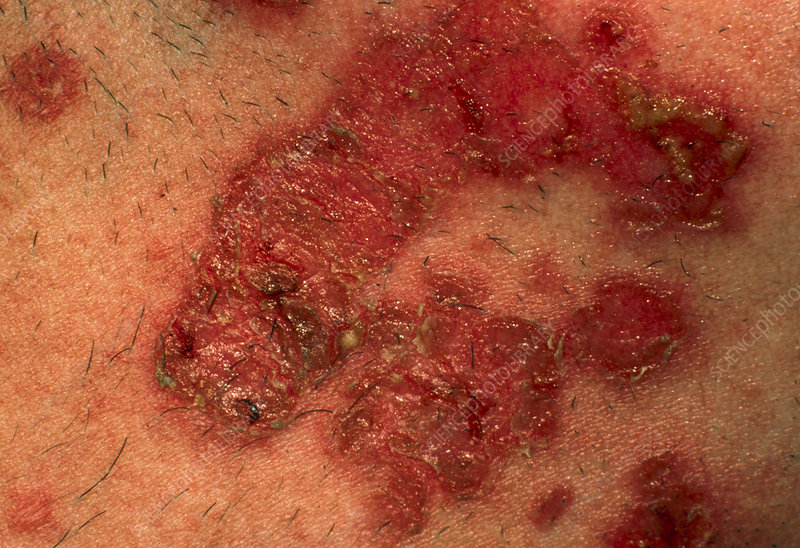 Staphylococcus impetigo skin infection