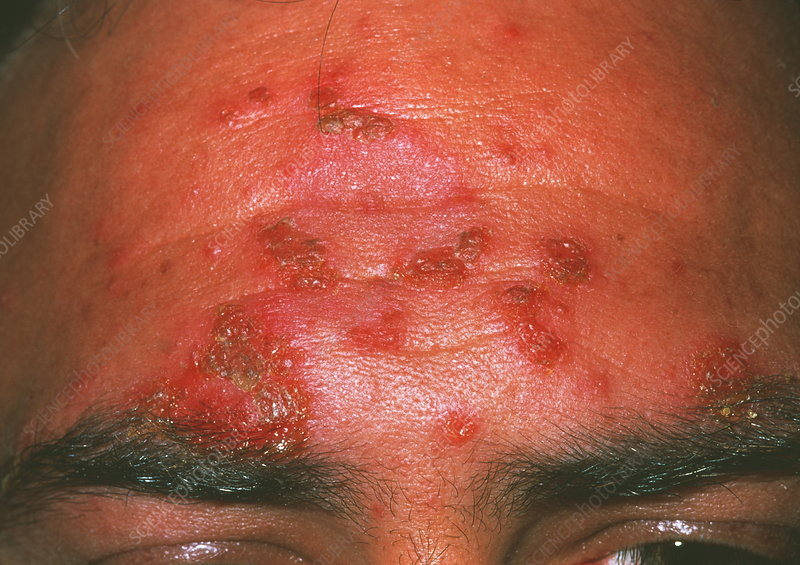 Impetigo skin infection