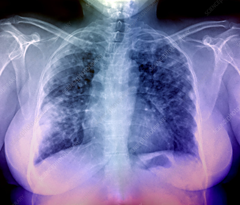Lung disease, X-ray
