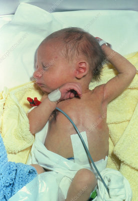 New-born infant suffering from jaundice