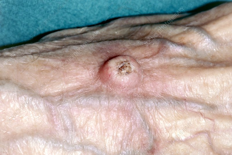 Keratoacanthoma on the back of the hand