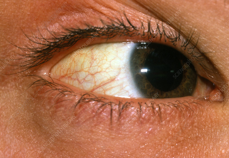 Yellowing of sclera of eye due to jaundice - Stock Image ...