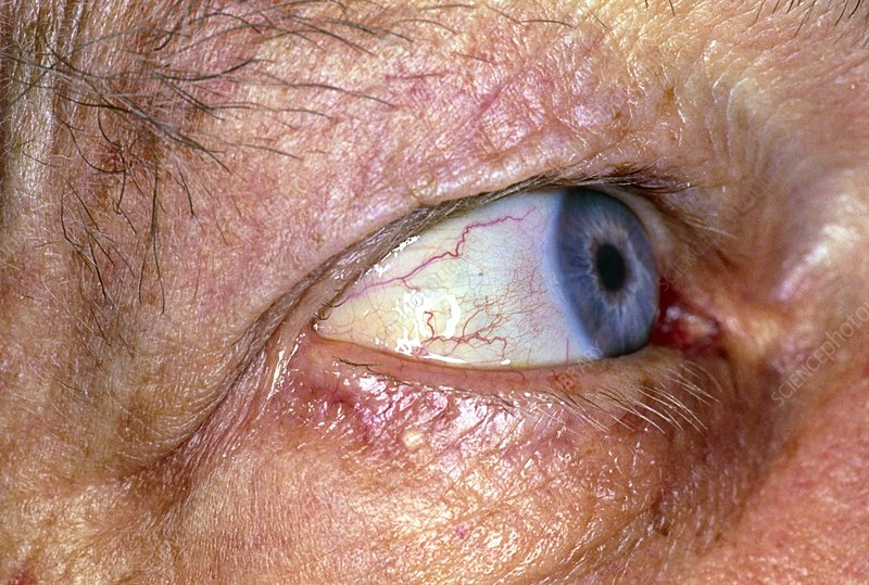 Jaundiced eye in a man with pancreatic cancer