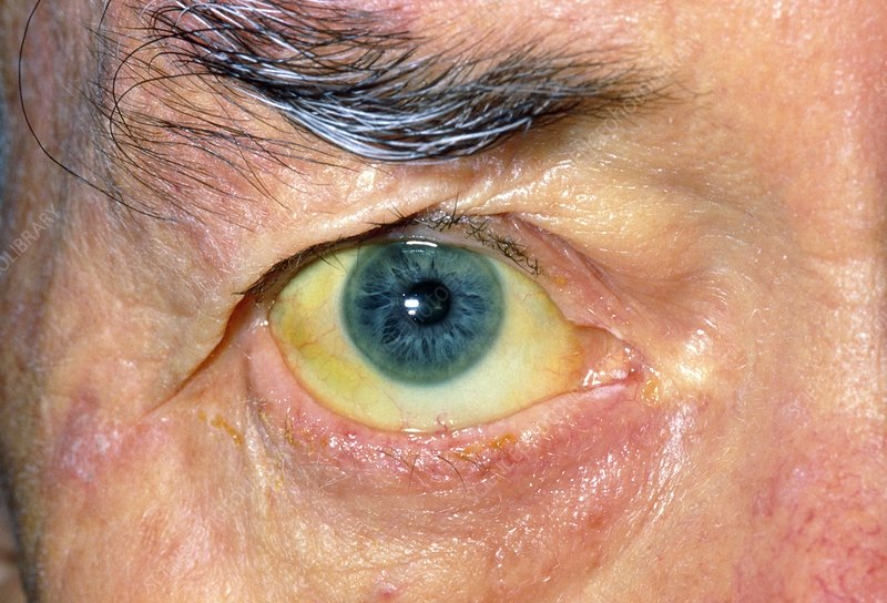 Jaundiced eye in a man with liver & colon cancer