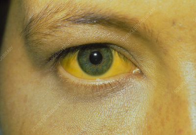 Jaundice: eye and skin of a patient