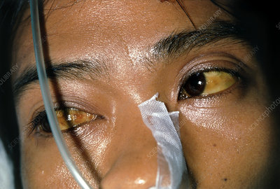 Malaria patient with jaundice, eyes and face.