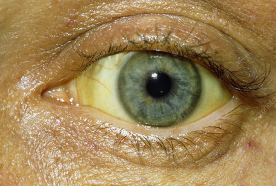 Close up of the eye of a jaundiced patient
