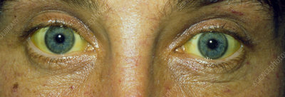Close up of the eyes of a jaundiced patient
