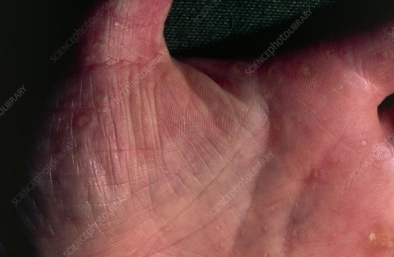 Skin growths