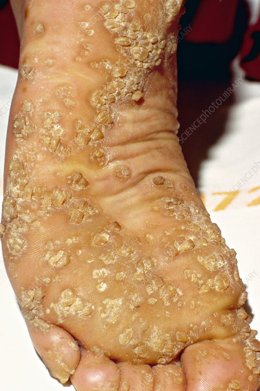 Credit One Application >> Palmoplantar keratoderma - Stock Image M190/0090 - Science ...
