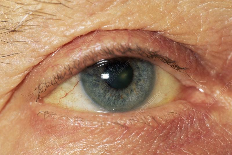 Slightly jaundiced eyes