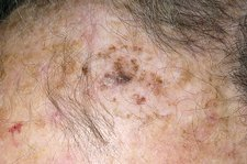 Follow-up to seborrhoeic wart treatment