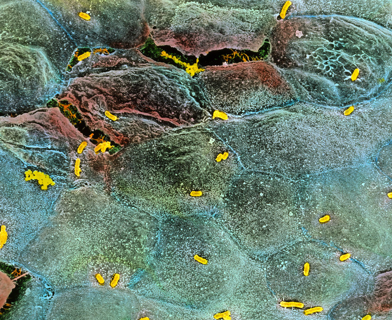 Coloured SEM of E. coli infection of the bladder