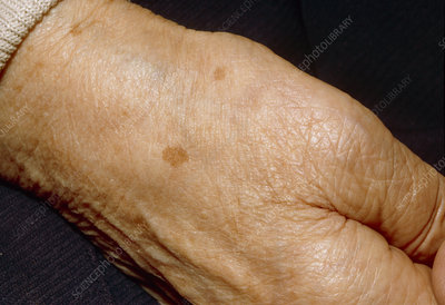 Liver spots on the hand of an elderly woman