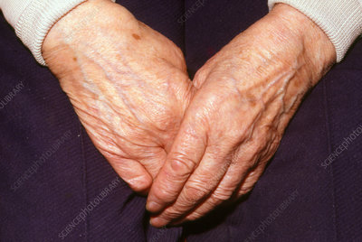Liver spots on the hands of an elderly woman