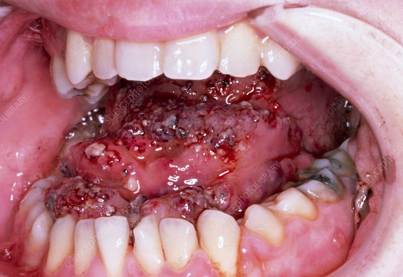 Lymphangioma affecting the tongue