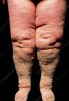 Primary lymphoedema in legs