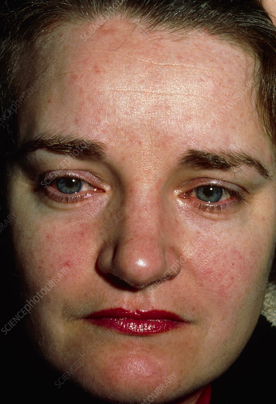 Facial rash of Systemic Lupus Erythematosus (SLE)