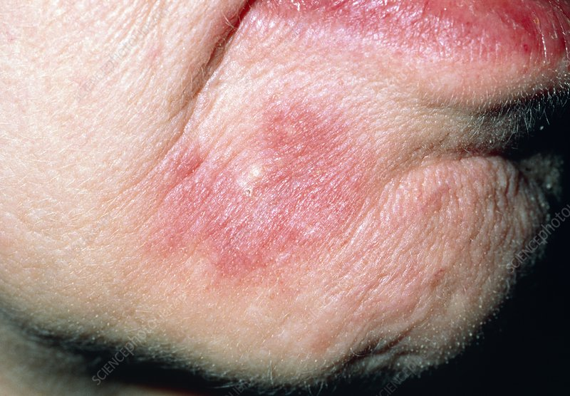 Systemic lupus erythematosis lesion on the face