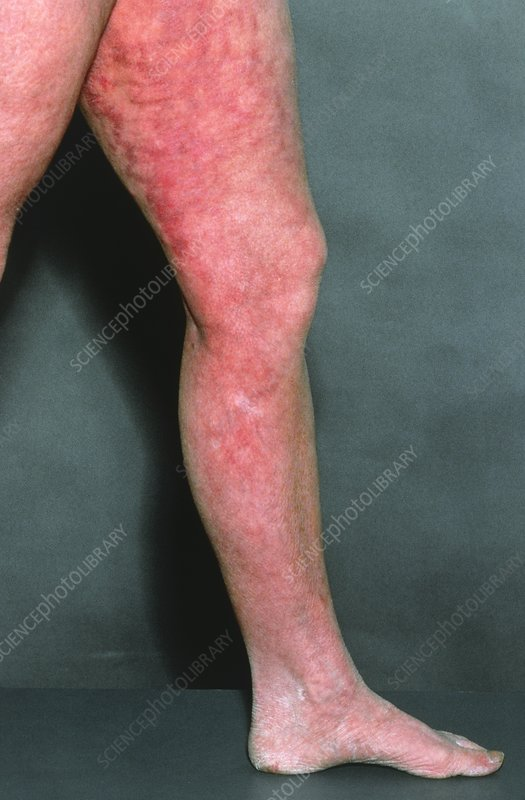 Livedo reticularis on a patient's leg