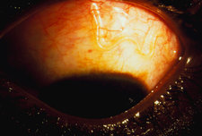 Eye closeup with Loa loa worm parasite