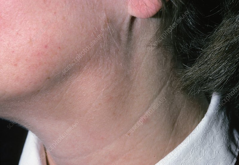 Swollen glands (lymphadenopathy) in woman's neck - Stock ...