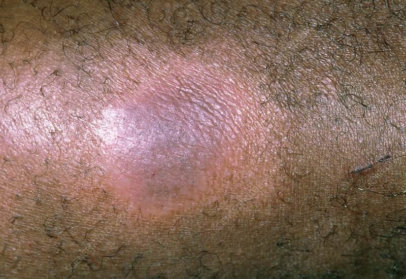 Lichen simplex rash on black skin