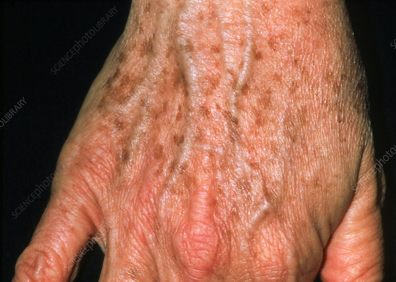 Lentigo: liver spots on a 53-year-old woman's hand