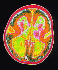 Coloured MRI brain scan showing lissencephaly