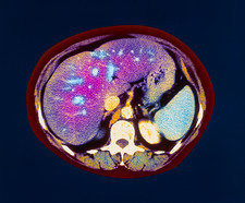 Fatty liver CT scan