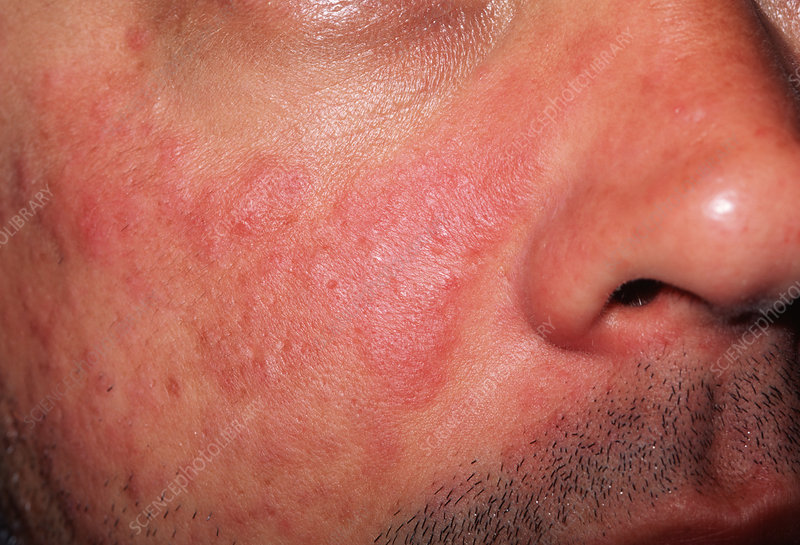 Lupus Skin Rash Stock Image M200 0168 Science Photo Library