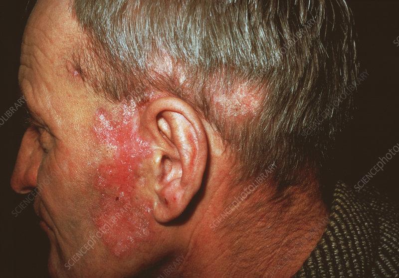 Lupus Skin Rash Stock Image M200 0172 Science Photo Library