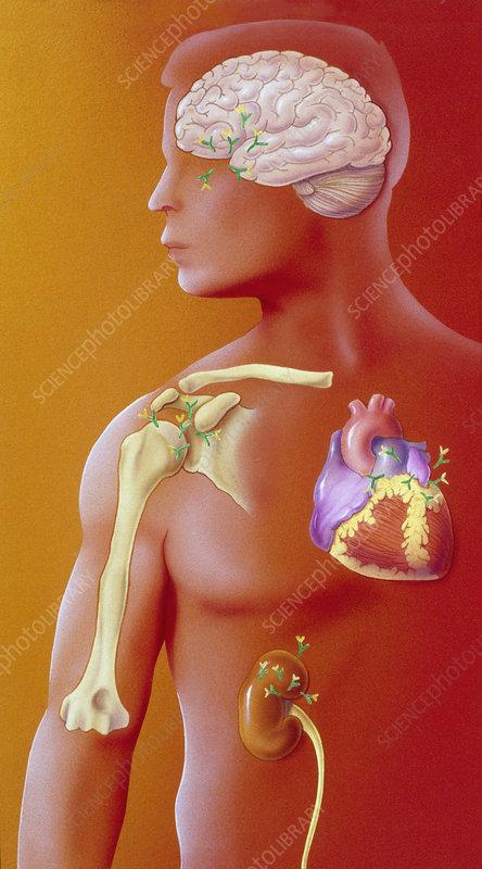 Lupus erythematosus
